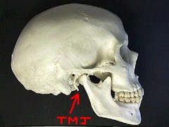 TMJ and Jaw Pain, Beverly Hills Chiropractor